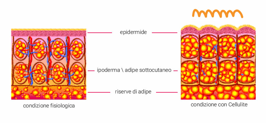come è fatta la cellulite